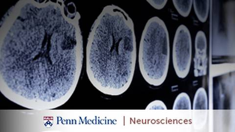 Time is Brain: Diagnosing and Treating Stroke in the Golden Window