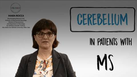 MS Talks: Cerebellum in Patients with MS